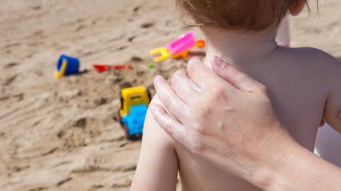 Im April ist unsere winterblasse Haut besonders anfällig für Sonnebrand.